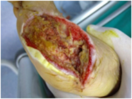 knee trauma implant fracture wound