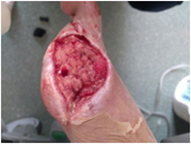Post-treatment knee trauma implant fracture wound healing