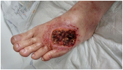 diabetic foot, infection and necrotic wound, debrided wound